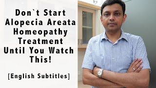 Don't Start Alopecia Areata Homeopathy Treatment Until You Watch This! including Home Remedies