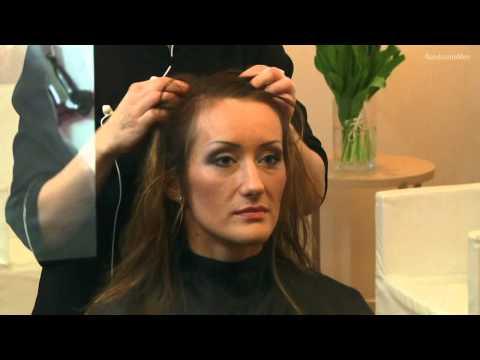 Zwiększenie stężenia cukru wypadanie włosów