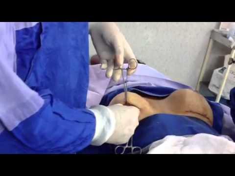 El pecho hermoso con implantami