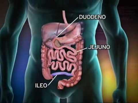 Diabetes dependente de insulina em 8 anos