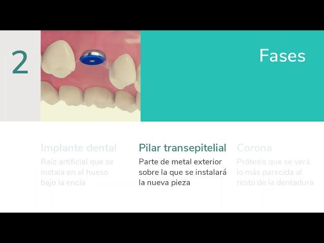 Dudas habituales y fases en los implantes dentales - Clínica Dental Rafael Menéndez