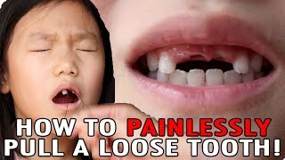 How To Pull A Loose Tooth | No Cry Teeth Pulling Method | Easily Extract Baby Teeth