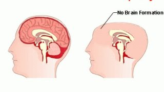 anencephaly - BABIES BORN WITHOUT A BRAIN