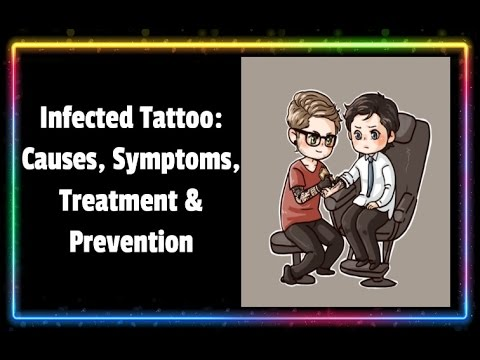 Video Infected Tattoo Causes, Symptoms, Treatment and Prevention