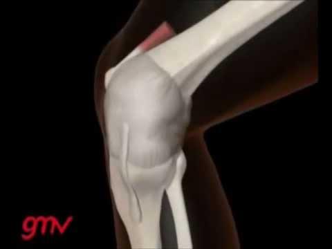 Lo mejor con pomada de la osteoartritis de la rodilla