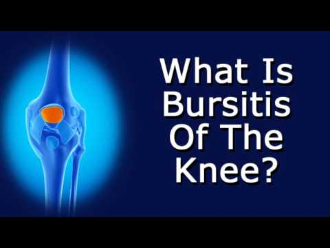 Video What Is Bursitis Of The Knee?