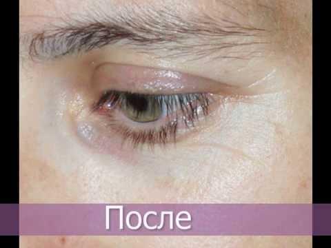 Сок алоэ применение для лица от морщин