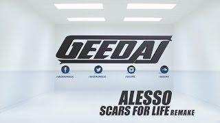 Scars For Life - ALESSO ( R E M A K E )