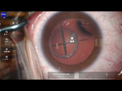 Articole poneuro-oftalmologice