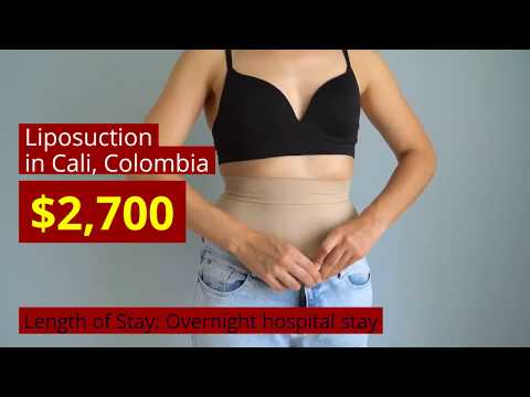 Liposuction-Treatment-Options-in-Cali-Colombia