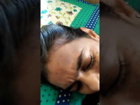 Facial mask na may sibuyas acne