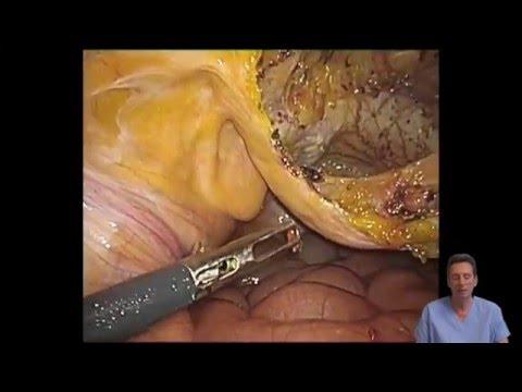 Laparoscopic Treatment Of Suprapubic Incisional Hernia