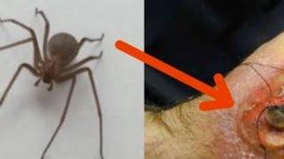 Увидишь этого паука - как можно быстрее делай вот это...