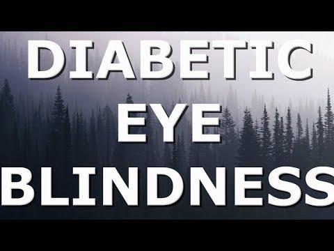 Meniu din meniul de diabet zaharat insulino-2 tip