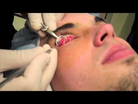 Video Stye Removal
