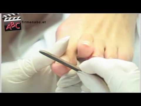 Die Behandlung des Kernes auf dem Finger