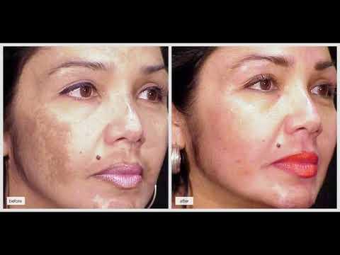 Аскорутин при пигментации кожи