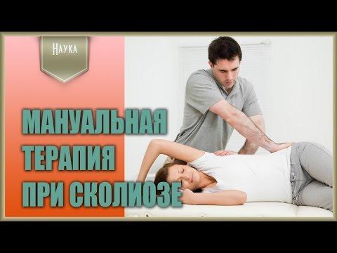 Сколиоз физ. упражнения