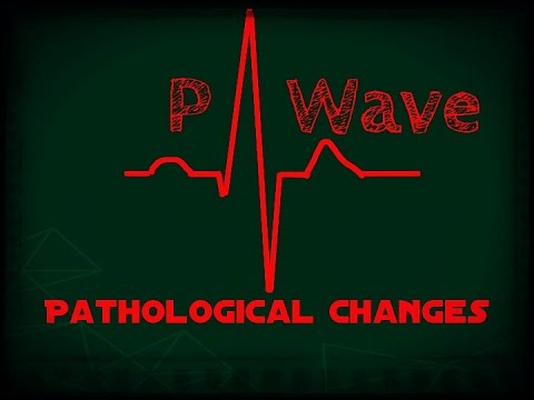 ECG (EKG) Tips and Tricks - P wave abnormalities - clinical interpretation - all possible Questions