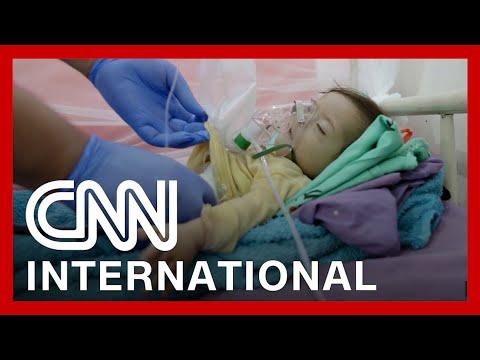 How children are bearing the brunt of famine in Yemen