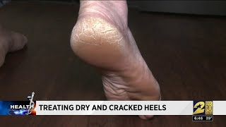 How to fix dry, cracked Heels