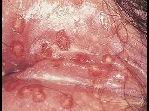 Hpv and tonsil cancer