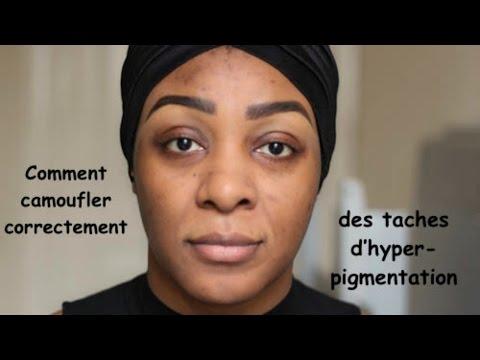 De quoi la pigmentation se manifeste sur la personne
