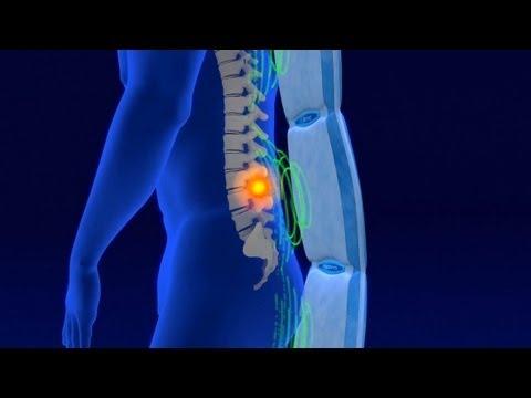 Rückenschmerzen im unteren Bereich der Wirbelsäule auf jeder Seite
