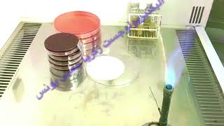 Germ tube test ( for Candida albicans)