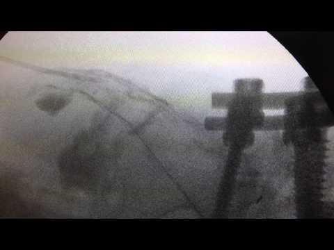 Wie man beschädigte Bänder und Meniskus des Kniegelenks behandeln