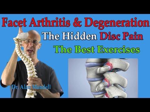 Video Facet Arthritis & Degeneration (The Hidden Disc Pain) Best Exercises - Dr Mandell