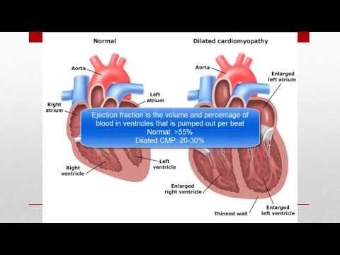 Malattie in cui lipertensione arteriosa