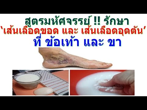 Troksevazin รักษา thrombophlebitis