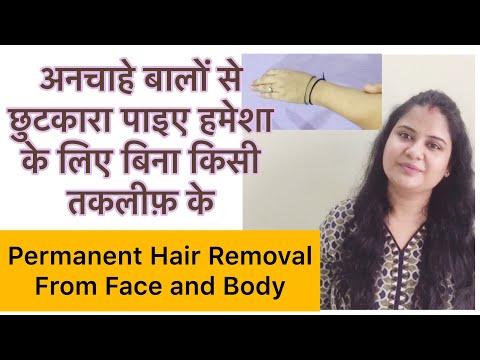 Permanently Remove Facial Hair & Body Hair | My permanent hair removal story|अनचाहे बालों से छुटकारा