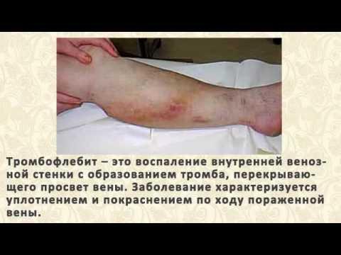 Боль в печени симптомы и лечение народными средствами