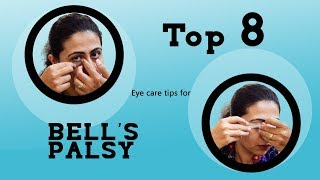 Top 8 Eye Care Tips For BELLS PALSY