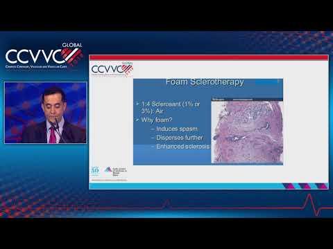 Gironoterapia unui mic varicoză pelviană