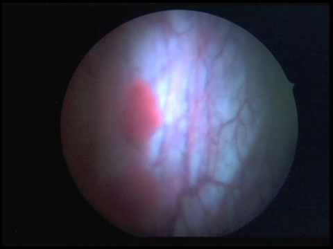 """Blue Light"" Cystoscopy"