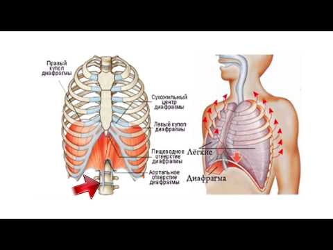 Кифоз лечение корсет