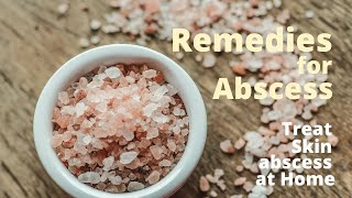 Home Remedies for Abscess - 3 Safe Ways to Treat Skin Abscess at home?