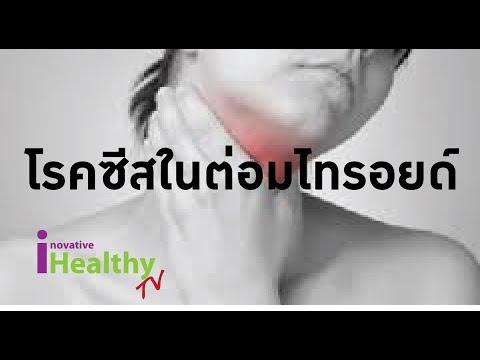 โรคสะเก็ดเงิน kutiveyt ครีม