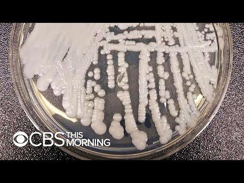 Papilloma vírus gyógyulása