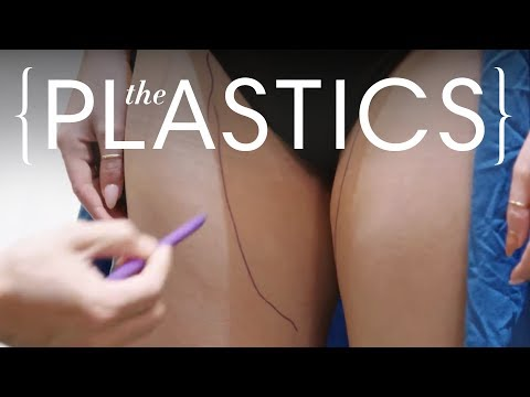 This Procedure Tightens and Tones Your Thighs | The Plastics | Harper's BAZAAR