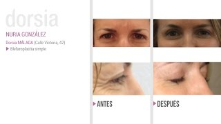 Blefaroplastia - Testimonio Nuria González - Clínica Dorsia Benidorm