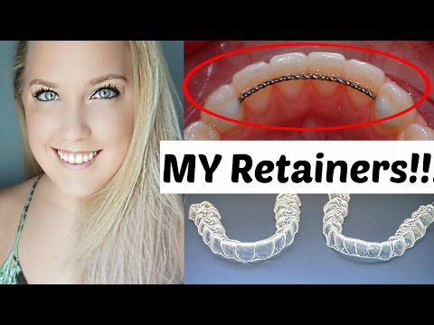 Retainers After Braces | Permanent and Temporary | Ashley Craig