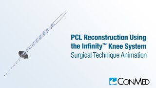 PCL Reconstruction Using the Infinity™ Knee System - CONMED Animation