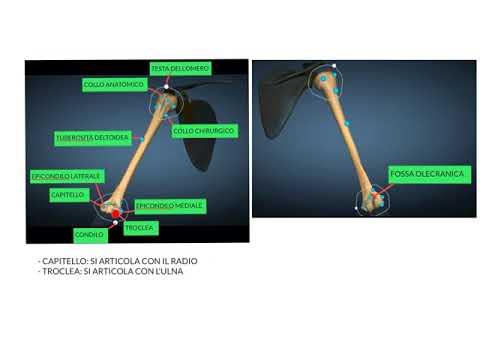 Giunti polyosteoarthrosis dei bracci di trattamento mani