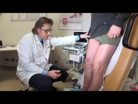 Sociālā nozīme prostatas vēzi