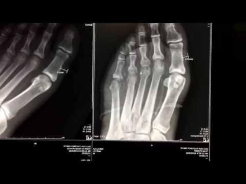 Bone Infection And Osteomyelitis In Diabetes Patient - Foot X-ray And MRI