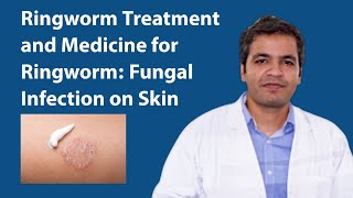 Ringworm Treatment: Fungal Infection on Skin Symptoms, Reason and Medicine for Ringworm Infection
